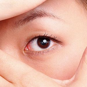 korean big eye surgery
