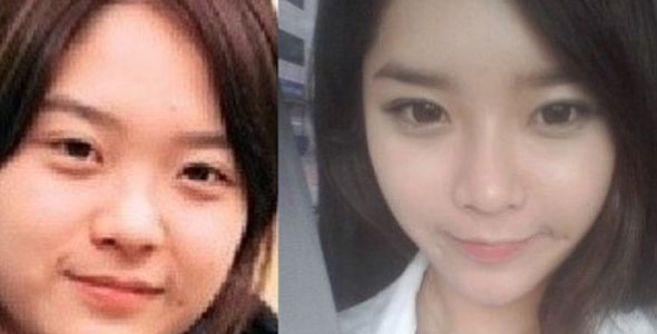 Asian women eye surgery