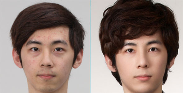interesting asian eye surgery before and after
