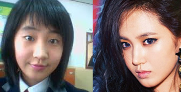 korean-eye-surgery-before-and-after