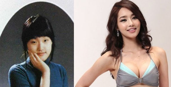 amazing korean before and after plastic surgery pictures
