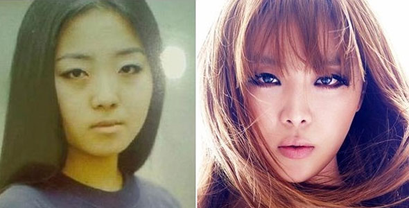 cute kpop plastic surgery before and after pictures