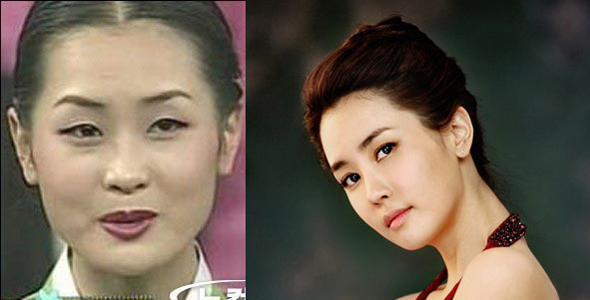korean before and after plastic surgery pictures