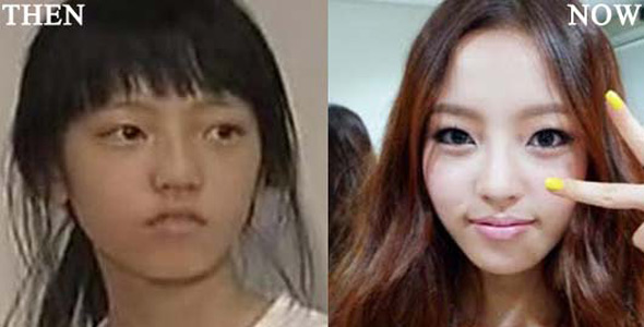 Double Eyelid Surgery Korea Doctor, Korean Plastic Surgery ...