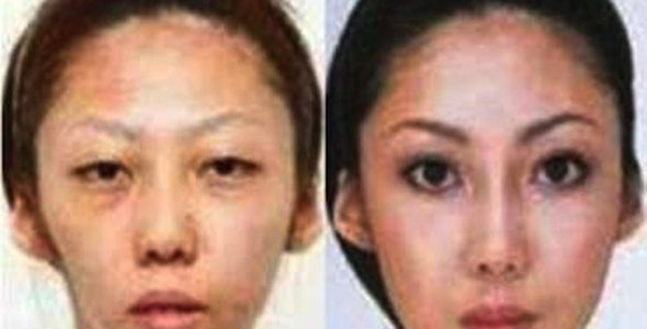 cosmetic surgery in korea