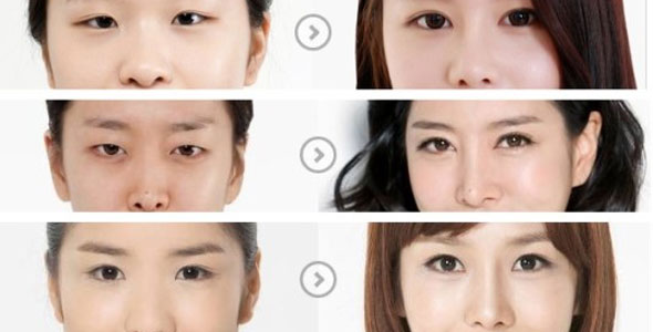 6 Before and After Korean Eyes Surgery Pictures | Seoul TouchUp's ...