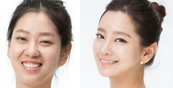 Before and After South Korean Eye Surgery | Seoul TouchUp's ...