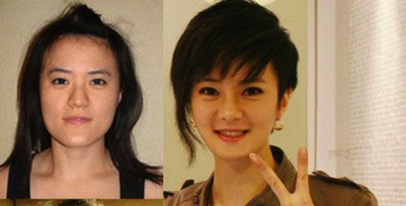 before and after vline surgery seoul touchup�s