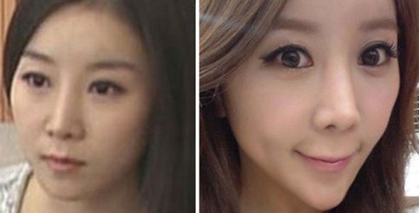 korean-plastic-surgery-gone-wrong