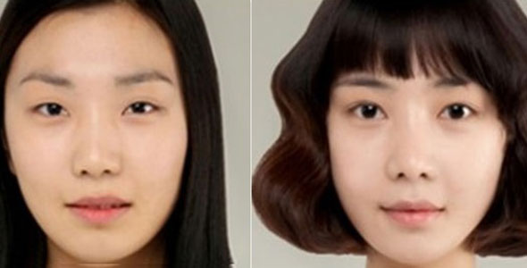6 Before And After Korean Plastic Surgery Dramatic Shots