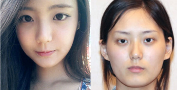 Korean Plastic Surgery Dramatic  2
