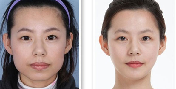 Korean Plastic Surgery Dramatic 3