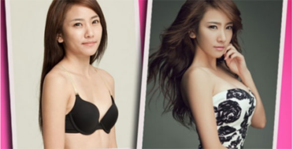 Korean Plastic Surgery Dramatic 6