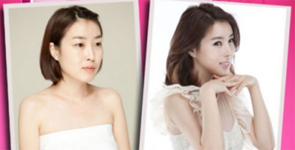 Korean Plastic Surgery Dramatic 5