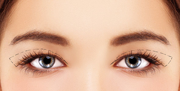 4 questions to ask before double eyelid surgery