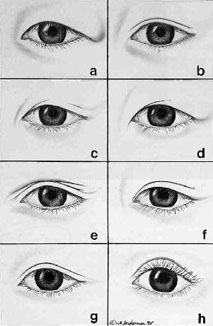 different types of eyelids