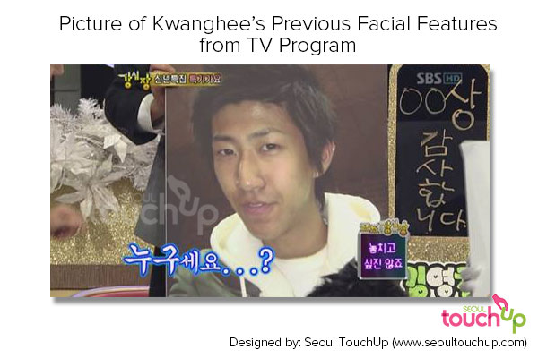 kwanghee-before-after-plastic-surgery-tv-program