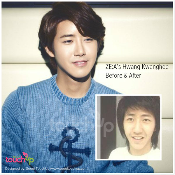 kwanghee-before-after-plastic-surgery