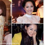 Asian Celebrities and Cosmetic Surgery Trends: Part 1