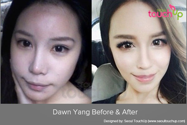 Asian Celebrities And Cosmetic Surgery Trends Part 2