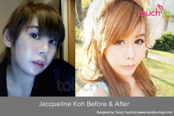 jacqueline-koh-plastic-surgery-before-after1