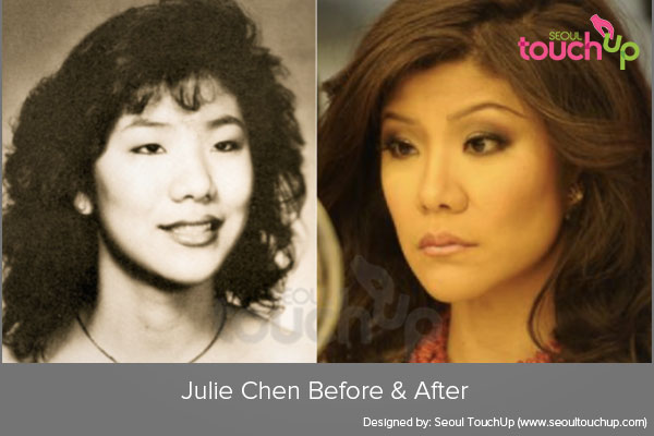 Asian celebrities plastic surgery
