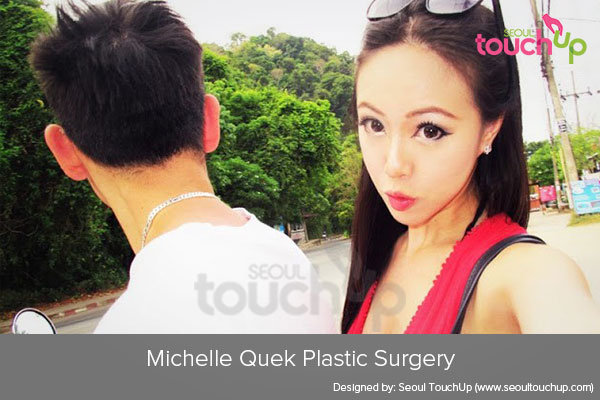 michelle-quek-plastic-surgery
