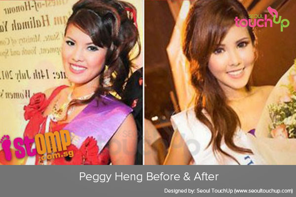 peggy-heng-plastic-surgery-before-after1