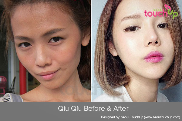 qiu-qiu-plastic-surgery-before-after1