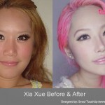 Asian Celebrities and Cosmetic Surgery Trends: Part 2
