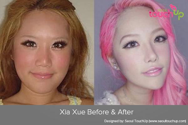 xia-xue-plastic-surgery-before-after1
