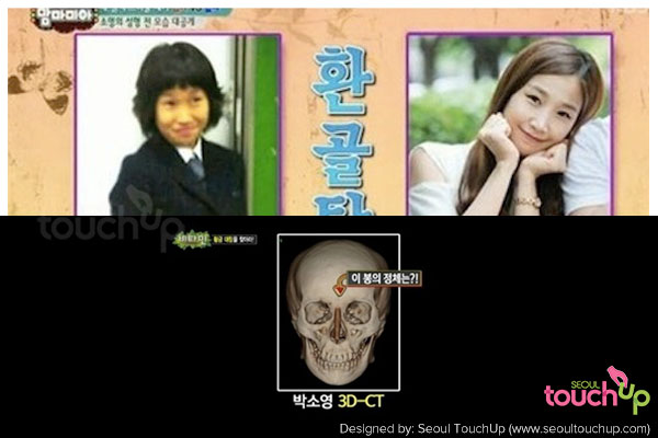 so-young-park-before-after-ct-scan