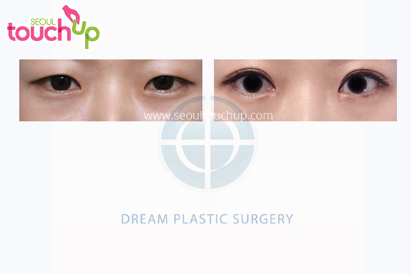 Epicanthoplasty and Lateral Canthoplasty Surgery  before and after