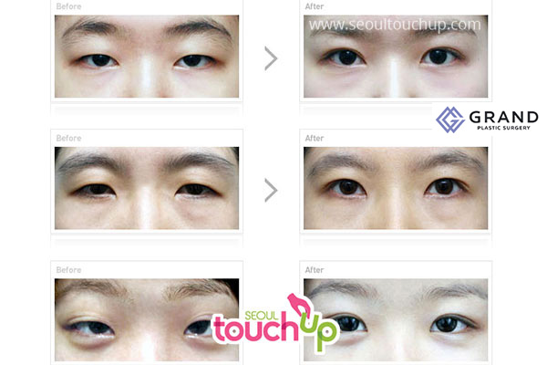 double eyelid surgery before and after photo