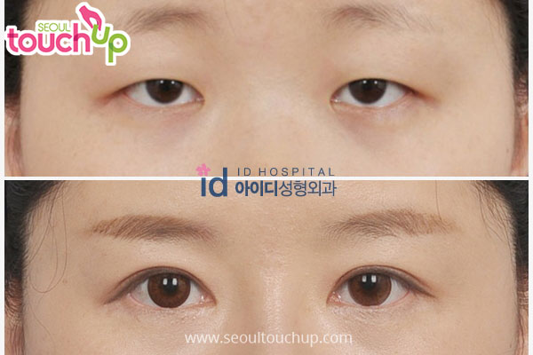 Ptosis Correction Before And After