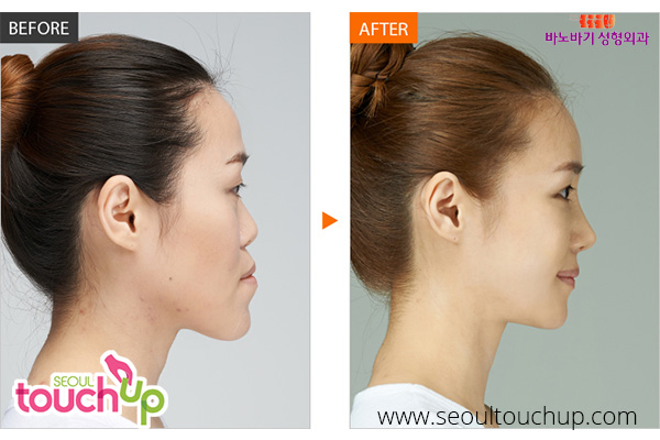 advanced-korean-rhinoplasty-before-after