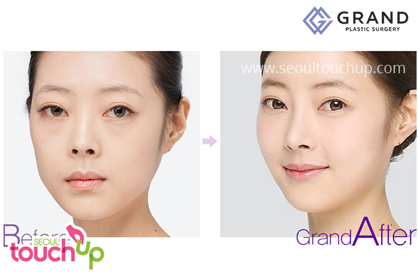 nose-bridge-augmentation-before-after
