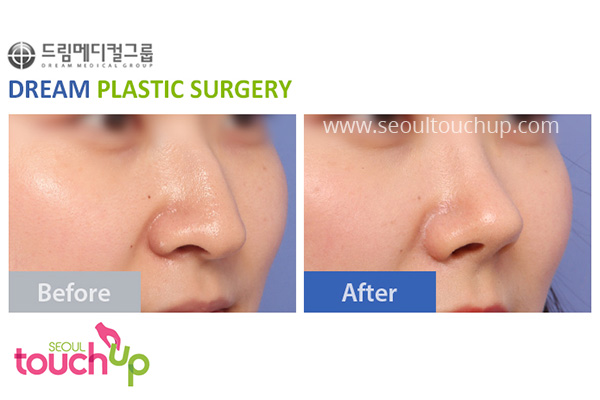 advanced-korean-rhinoplasty-before-after1