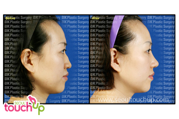 advanced-korean-rhinoplasty-before-after10
