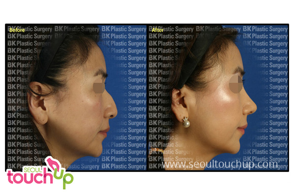 advanced-korean-rhinoplasty-before-after11