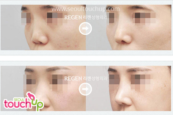 advanced-korean-rhinoplasty-before-after2