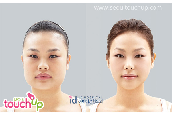 advanced-korean-rhinoplasty-before-after5