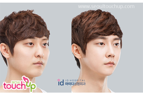 advanced-korean-rhinoplasty-before-after6