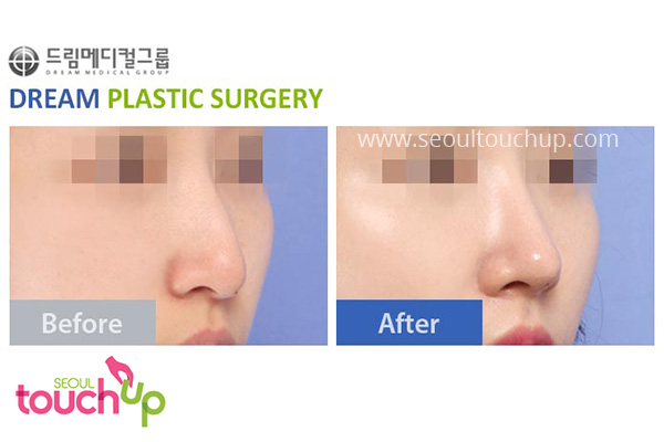 advanced-korean-rhinoplasty-before-after7