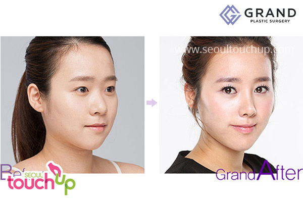 advanced-korean-rhinoplasty-before-after8
