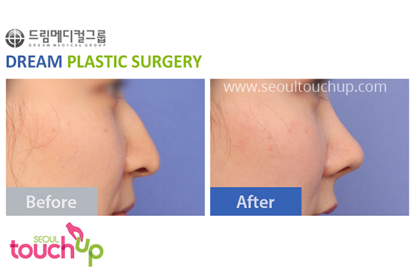 advanced-korean-rhinoplasty-before-after9