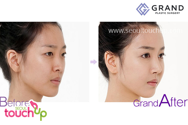nose-lift-before-after1