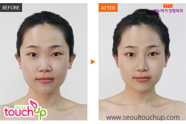 nose-lift-before-after11