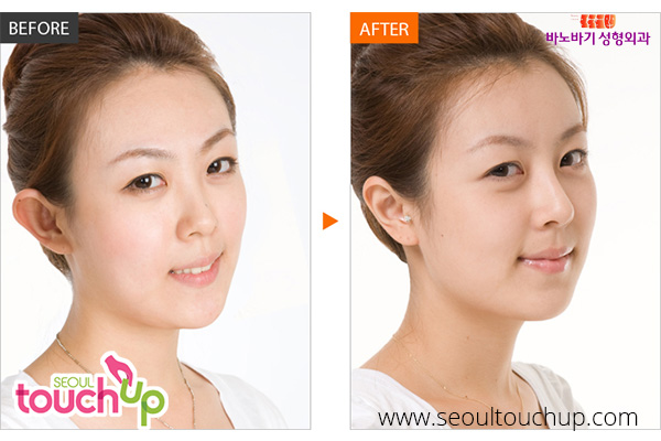 nose-lift-before-after2