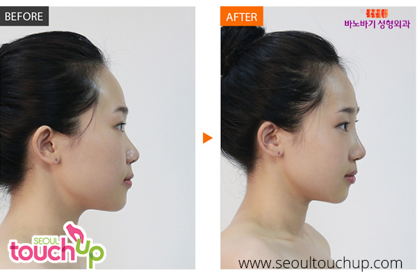 nose-lift-before-after8